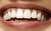 Férias de julho: É hora de cuidar do sorriso