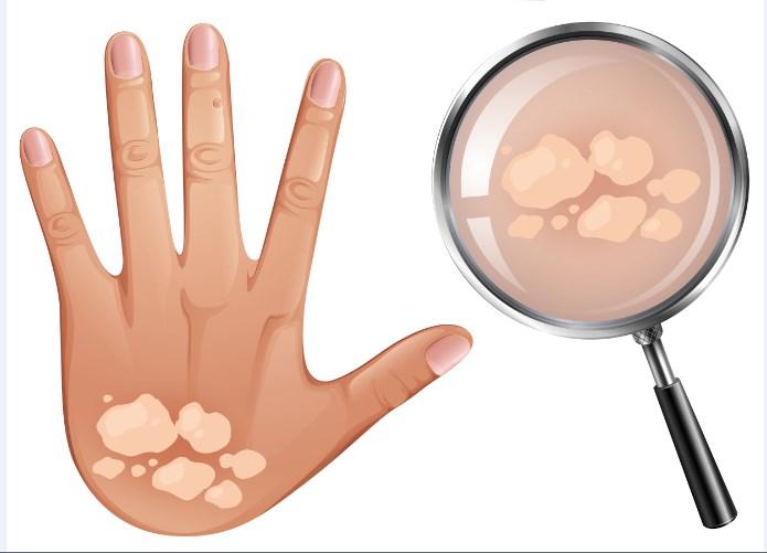 Verão: dermatologista alerta sobre cuidados com a pele durante a estação mais quente do ano