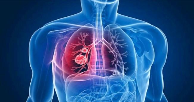 24 de março: Dia Mundial da Tuberculose